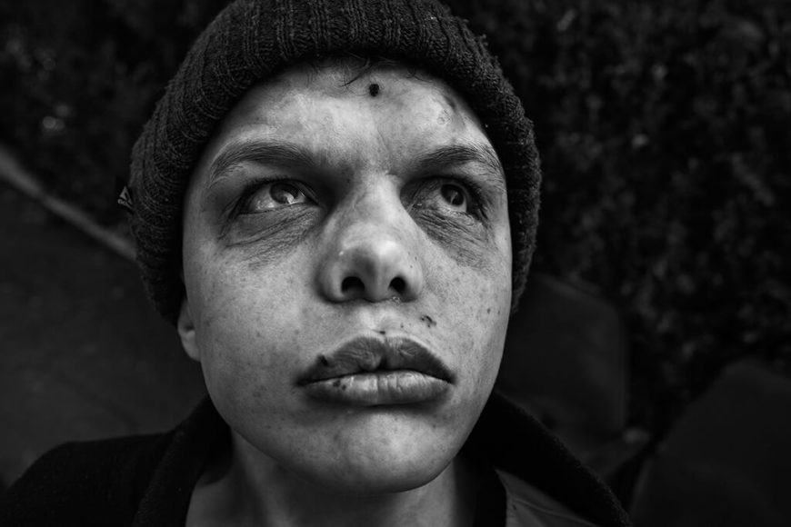 """Mikkel Horlyck (Dänemark)  Entdeckung des Jahres 2019   Vor Jahren sah Mikkel Horlyck erstmals Fotos von Kindern in osteuropäischen Waisenhäusern - und war tief berührt. 2016 reiste der Däne selbst nach Moldawien, um zu sehen, wie sich die Situation seit den 1990er-Jahren verändert hat. Für seine Serie """"The Neglected"""" wurde der Fotografiestudent mit dem """"Discovery of the Year""""-Preis ausgezeichnet und erhält ein Preisgeld von 5.000 US-Dollar."""